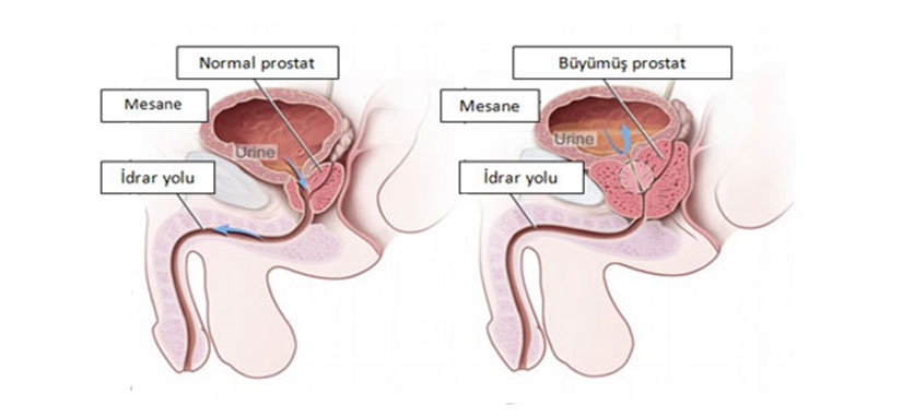 iyi-huylu-prostat-buyumesi