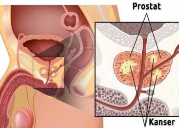 prostat-kanseri