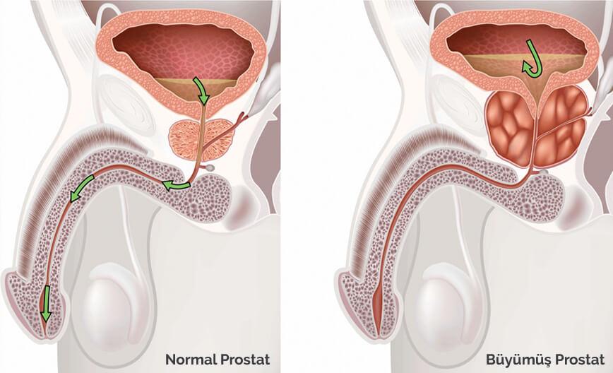 prostat-tedavisi-nedir