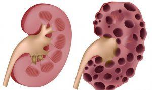 Böbrek üstü bezi adrenal bez, sürrenal bez diye de adlandırılır. Her iki böbreğin üst kısmında bulunan vücudumuzun idamesi için çok önemli hormonlar salgılayan korteks ve medulla olarak iki bölümden oluşan üçgen şeklinde sarı renkli bezlerdir.