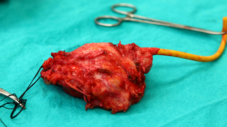 mesane ameliyatı