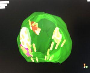 prostat füzyon biyopsi mri görüntüsü
