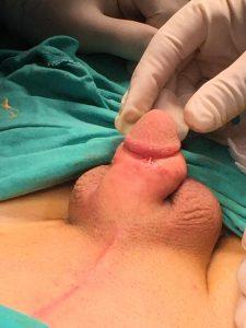 küçük penis